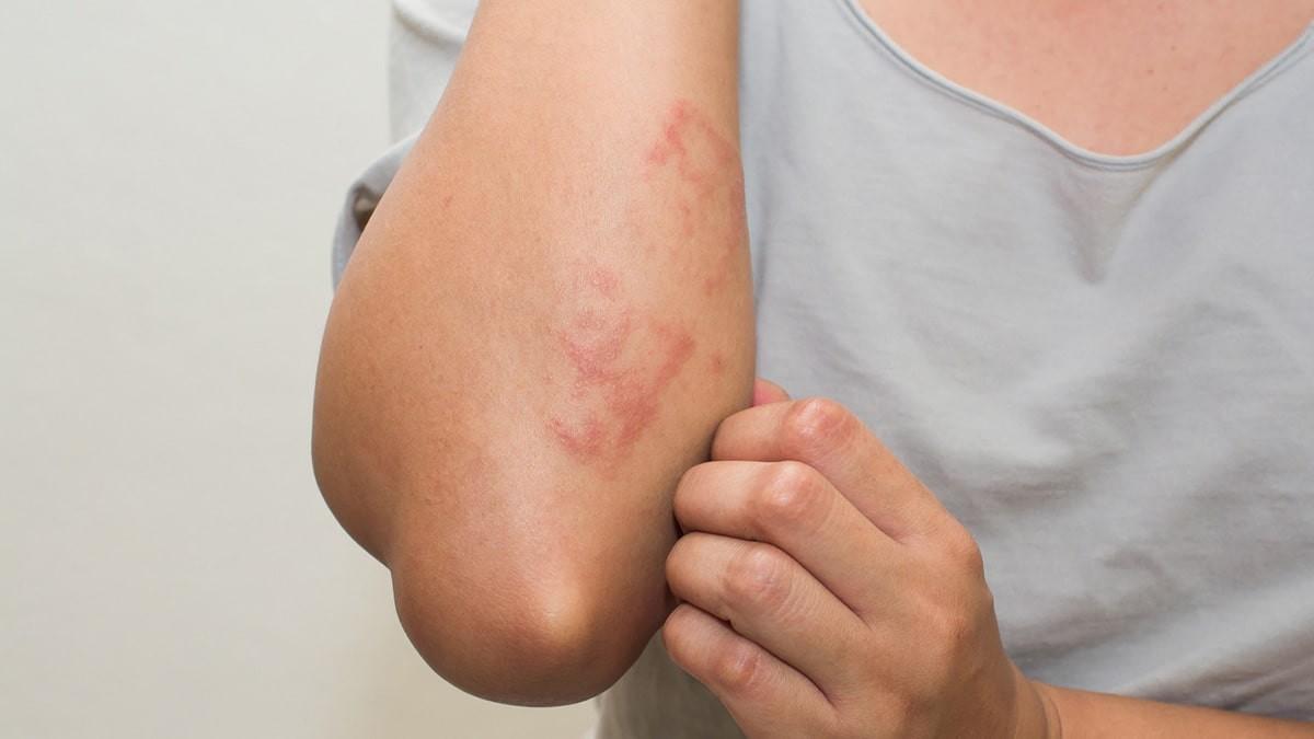 A leggyakoribb bőrrákos elváltozások - Képgaléria